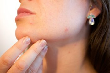 I rimedi contro l'acne