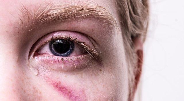 Ostruzione delle vie lacrimali: di cosa si tratta