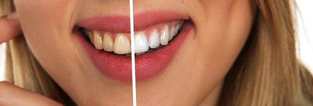 Denti ruvidi: quali sono le principali cause e che tipi di rimedi si possono utilizzare?